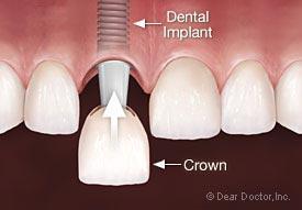 implants12