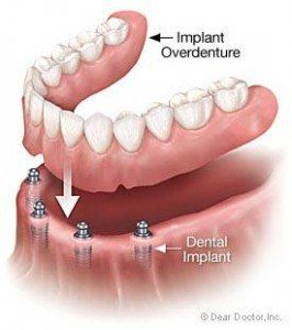 implants32-266x300